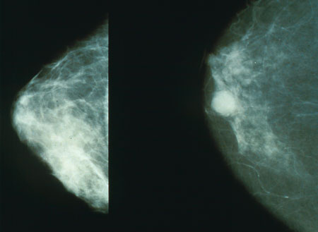 Revisiting the USPSTF Breast Cancer Screening Guidelines: Ethics, and Patient Responsibilities