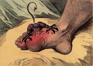 From The Archives – Gout: A Disease of the Blessed or a Blessing in Disguise?