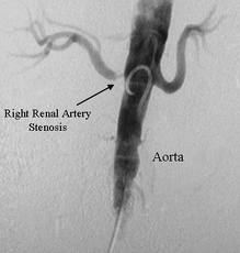 To Stent or not to Stent? A Review of the Evidence on the Utility of Stenting in Renal Artery Stenosis