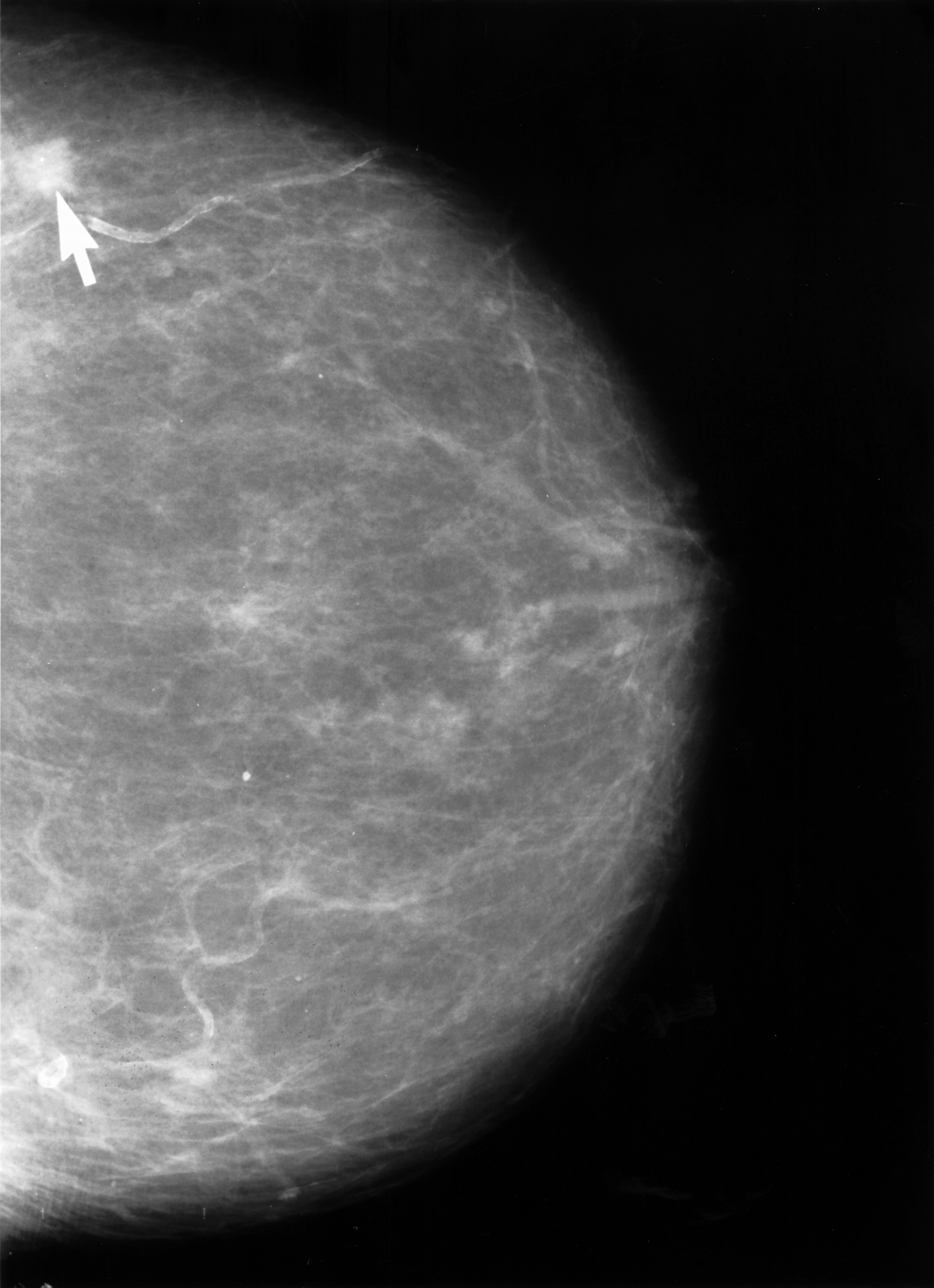 Mammograms in the News, Yet Again | Clinical Correlations