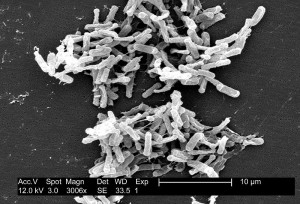 Are Probiotics Effective In Preventing Clostridium Difficile Associated Diarrhea?