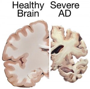 Help Versus Hope: Acetylcholinesterase Inhibitors in Alzheimer's Disease