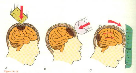 Cerebral HemorrhageIntracranial Hemorrhage