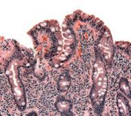 A Case of Celiac Disease and Diagnostic Clues