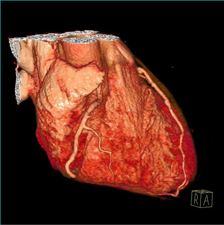 Noninvasive Cardiac Imaging: Coronary CT Angiography – Clinical ...