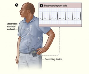 Outpatient Rhythm Monitoring: Available Options and Diagnostic Yield