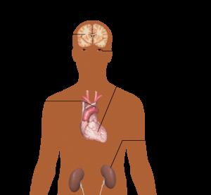Gamechanger?  Is Spironolactone the Magic Bullet for Resistant Hypertension?