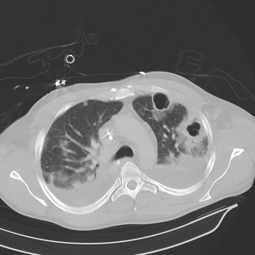 pulmonary hypertension treatment guidelines 2017