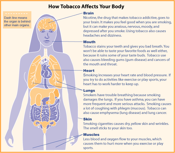 Smoking cessation are all modalities the same clinical correlations by monil shah md ccuart Images